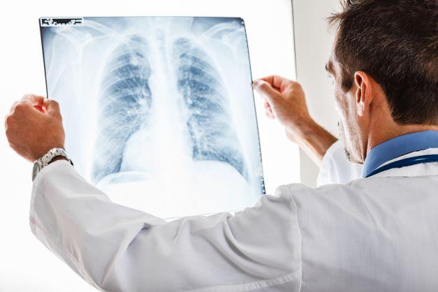 """Notiks diskusija """"Plaušu vēzis – kā dzīvot tālāk?"""""""